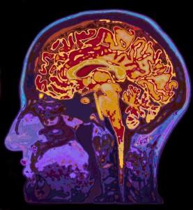 MRI Image Of Head